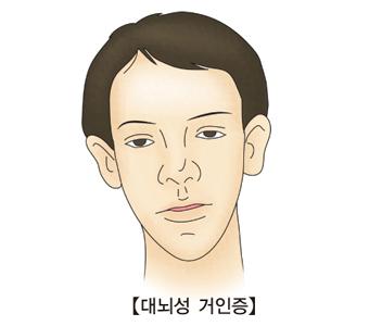 대뇌성 거인증-대뇌성거인증에걸린 남성