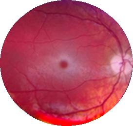 붉은 반점이 나타난 눈