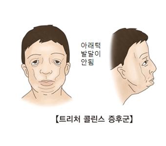 트리처 콜린스 증후군- 아래턱 발달이 안된 남성 그림 예시