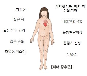 터너증후군-저신장,짧은목,넓은유두간격,짧은손톱,다발성색소점,삼각형얼굴,작은턱,귀의기형,대동맥협착증,유방발달이상,팔굼치변형,무월경