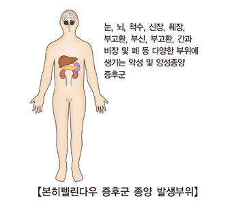 본히펠린다우 증후군 종양 발생부위-눈,뇌,척수,신장,췌장,부고환,부신,부고환,간과비장 및 폐등 다양한 부위에 생기는 악성 및 양성종양 증후군