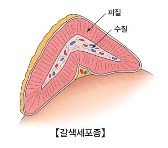 갈색세포증 그림예시및 피질,수질의 위치