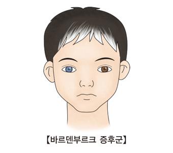 청력장애와 피부와 머리카락, 눈의 색소변화 등을 특징보이는 남자아이
