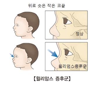 정상아이의 코끝과 윌리암스증후군을 가진 아이의 코끝 그림 예시