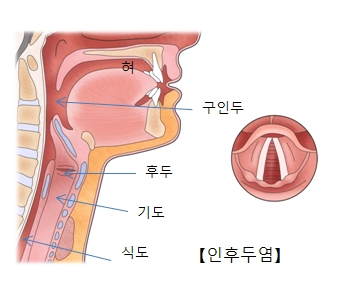 혀,구인두,후두,기도,식도의 위치및 구인두에 발병한 인후두염의사진