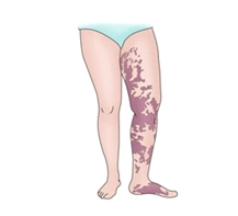 왼쪽 다리 주변 급성특발성 혈소판 감소성 자반증이 생긴 여성의 예시