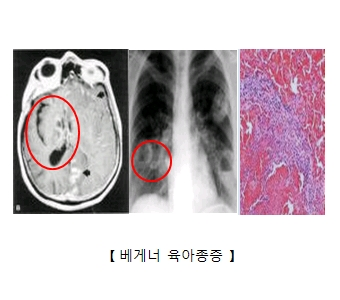 베게너육아종증에 감연된 신장의 X-ray 흉부X-ray 베게너육아종세포의모습