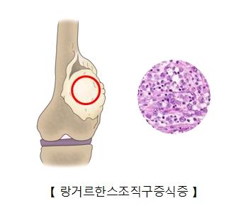 관절주변 링거르한스조직구증식증의 예시