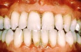 치은염으로 인해 잇몸이 손상된 모습의 예시