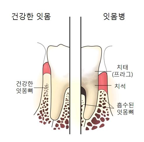 건강한 잇몸(건강한 잇몸뼈)및 잇몸병(치태 프라그 치석 흡수된잇몸뼈)의 차이를 예시