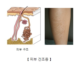 우리몸의 피부의 구조예시 및 실제 종아리 주변 피부건조증이 생긴 예시