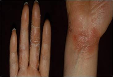실제 손가락 주변과 팔목부위에 생긴 피부염의 예시
