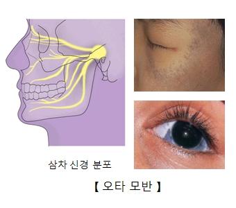 삼차 신경 분표의 예시및 눈 주변및 눈가의 오타모반 예시