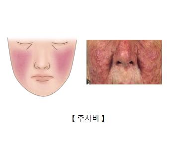 얼굴 주위에 딸기코가 발생한 예시