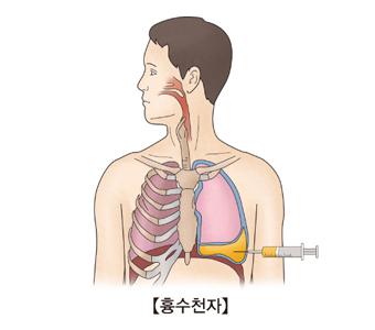 흉막삼출을 확인하기 위해 흉막액을 투입하는 남성