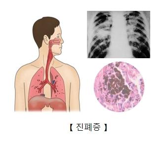 진폐증사진 및 진폐증으로 인해 가슴부분을 찍은 x-ray사진