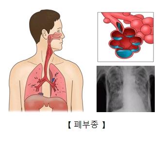 폐부종 x-ray사진 및 페부종 세포