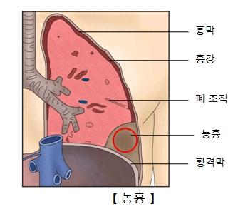 흉막 흉강 폐조직 농흉 횡격막 위치를 표시한 예시