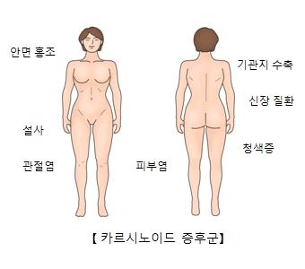 안면홍조 설사 관절염 피부염 청색증 신장질환 기관지수축등 카르시노이드 증후군의 예시
