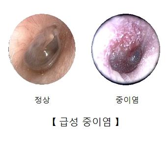 귀 내시경으로 본 정상적인 고막과 중이염에 걸린 고막의 모습