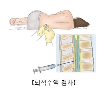 새우자세로누운사람에게 주사기로 척추액을 뽑고 있음