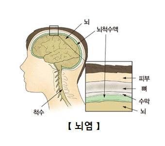 뇌 뇌척수액 척수의위치및 두피안의 피부,뼈,수막,뇌의 위치