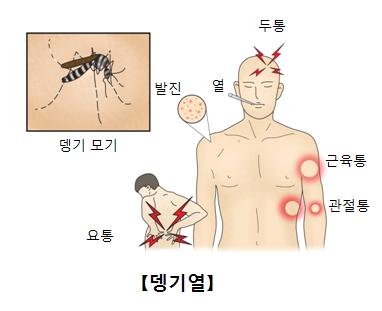 뎅기모기와 뎅기바이러스가 감염되었을때 나타나는증상 두통,열,발진,근육통,관절통,요통
