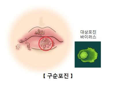 구순포진에감염된입술과 대상포진바이러스