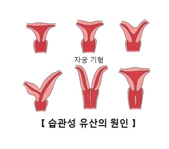 습관성 유산의 원인-자궁기형의 그림 예시