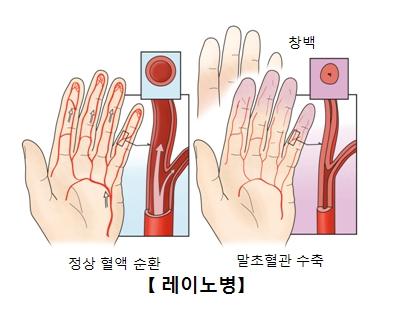 레노이병-정상혈액순환사진예시(왼쪽),말초혈관수축되손이창백해진 사진예시(오른쪽)