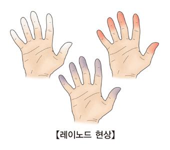 레노이드현상-손가락이창백해지고 점차 푸르스름해지며 아픈느낌이생김