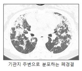 기관지 주변으로 분포한 폐경결의 예시