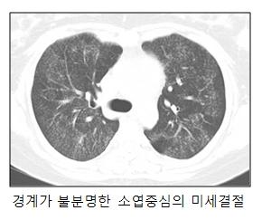경계가 불분명한 소엽중심의 미세결절한 폐의 사진