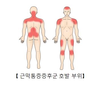 근막통증증후군 호발 부위 사진예시