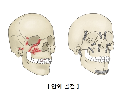 안와골절에 걸린 두개골 예시