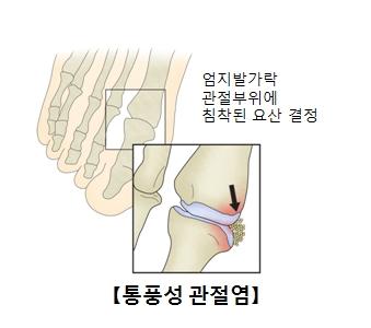 통풍성관전염으로 인해 엄지발가락 관절부위에 침착된 요산결정 사진