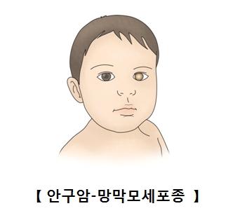 안구암 망막모세포종에 걸린 유아의 예시