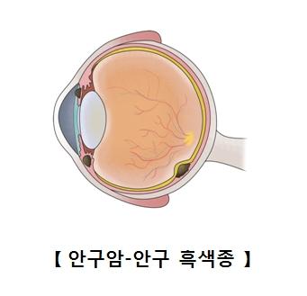 안구암 안구 흑색종의 예시