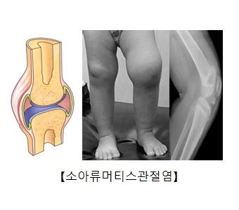 소아류머티스관절염에 걸린관절의 단면도와 실제아이의다리모습과 X-ray사진