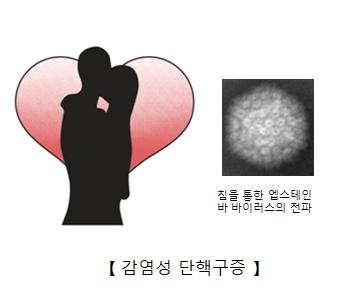 키스하는남녀와 엡스타인-바 바이러스 세포모습
