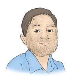 다모증으로 인해 얼굴전체에 털이자란 남성