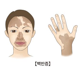 얼굴과 손부분의 백반증의 예시