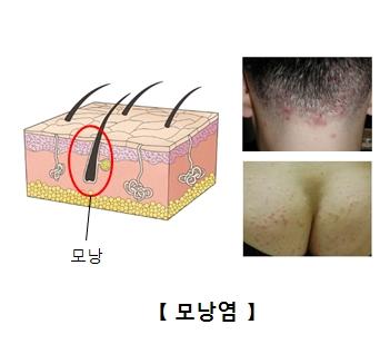 모낭의 위치와 머리 뒷편 및 엉덩이쪽 모낭의 예시