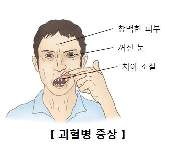 괴혈병증상 창백한피부,꺼진눈,치아소실