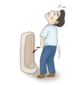 소변중 혈뇨가 나와 고통스러워 하는 남성