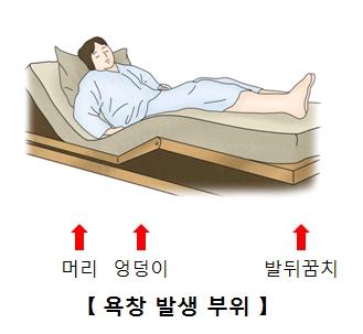 머리 엉덩이 발뒤꿈치에 발생되는 욕창 위치에 대한 예시