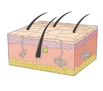 신체 일부분중 압박 괴사(욕창)로 인해 생긴 조직단면도 예시