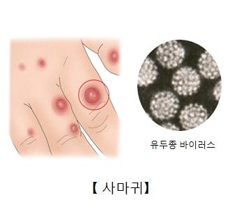 손가락 마디의 사마귀 예시 및 유두종 바이러스