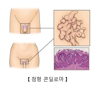 남녀 성기에 발생된 첨형 콘딜로마의 예시