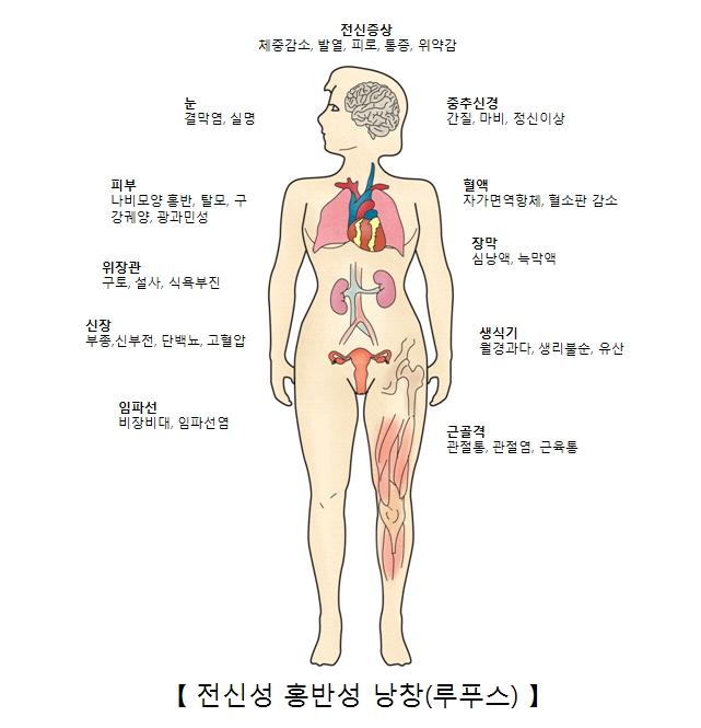 전신성 홍반성 낭창의 증상 전신증상(체중감소 발열 피로 통증 위악감) 눈(결막염 실명) 중추신경(간질 마비 정신이상) 피부(나비모양홍반 탈모 구강궤양 광과민성) 혈맥(자가면역항체 혈소판감소) 장막(심낭액 녹막액) 위장관(구토 설사 식욕부진) 신장(부종 신부전 단백뇨 고혈압) 생식기(월경과다 생리물순 유산) 임파선(비장비대 임파선염) 근골격(관절통 관절염 근육통)